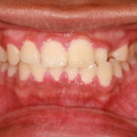 A patient with gingivitis which is a sign of periodontal disease